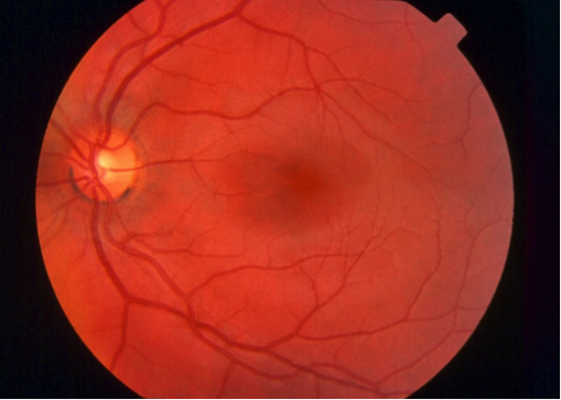 diabetic-retinopathy-1