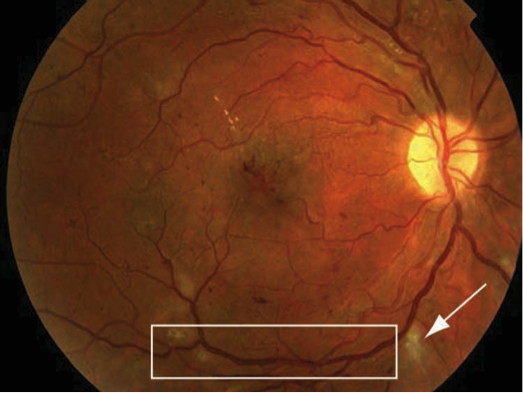 diabetic-retinopathy-2