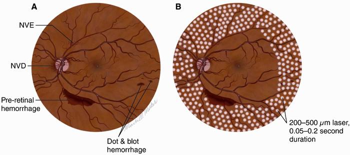 diabetic-retinopathy-4