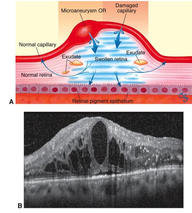 diabetic-retinopathy-6