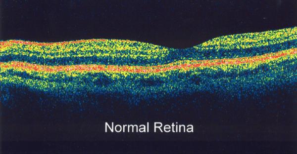 diabetic-retinopathy-7